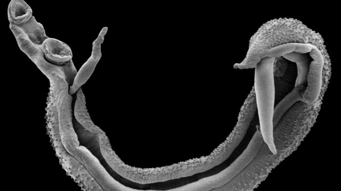 Scanning electron microscope image of a schistosome worm pair. Trustees of the Natural History Museum