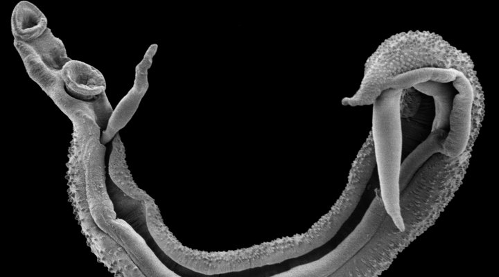 A scanning electron micropscope image of the a schistosome worm pair. Image Trustees of the Natural History Museum, London